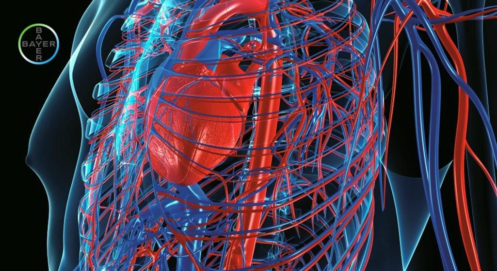 Bayer: Αναθεωρημένες Κατευθυντήριες Οδηγίες για την Οξεία και Χρόνια Καρδιακή Ανεπάρκεια6 παρουσίασε η Ευρωπαϊκή Καρδιολογική Εταιρεία (ESC), στο πλαίσιο του συνεδρίου ESC Congress 2021 στις οποίες η επιδεινούμενη καρδιακή ανεπάρκεια αναγνωρίζεται ρητώς για πρώτη φορά και η βερισιγουάτη συστήνεται πλέον, συμπληρωματικά της καθιερωμένης αγωγής αντιμετώπισης της νόσου, σε ασθενείς οι οποίοι διατρέχουν κίνδυνο επιδείνωσης και επανανοσηλείας.