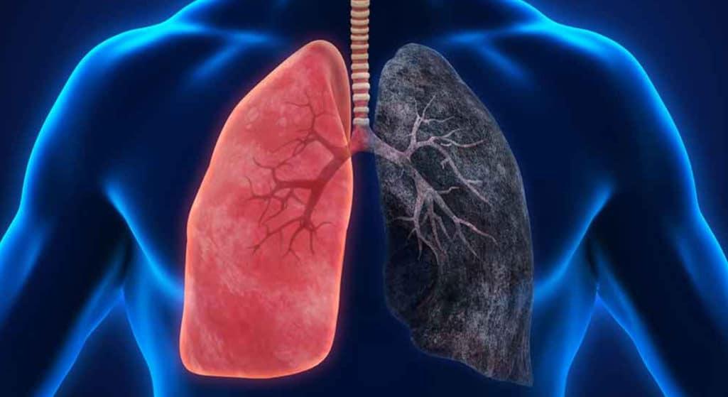 Γιατρός στην Κίνα αναρτά βίντεο με την εικόνα από τους πνεύμονες που μόλις βγήκε από το στήθος ενός χρόνιου καπνιστή και τα πλάνα γίνονται viral.