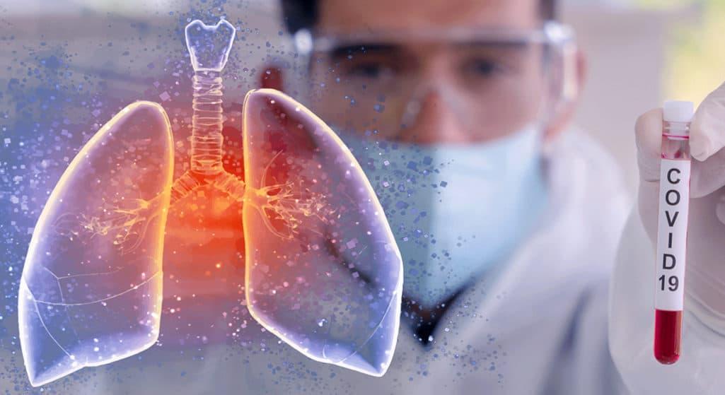 Κορωνοϊός: Προστατευμένοι για 2 – 3 χρόνια όσοι αναπτύξουν αντισώματα